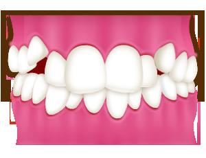 叢生(そうせい)/乱ぐい歯/八重歯