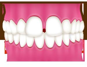 すきっ歯/正中離開(せいちゅうりかい)
