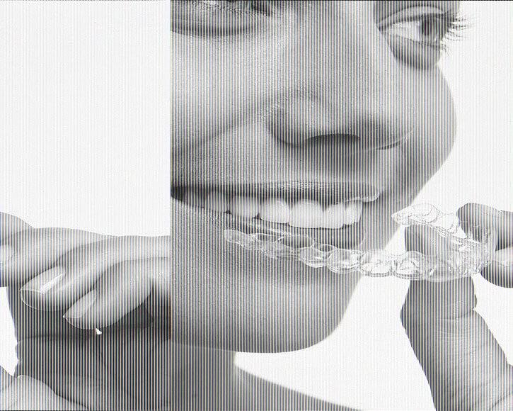 なるべく抜歯をしない矯正治療