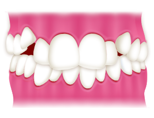 叢生(乱ぐい歯、八重歯)